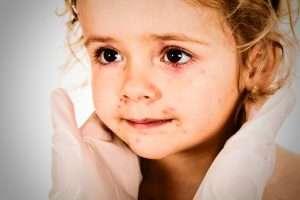 Аллергия у детей старше двухлетнего возраста